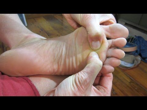 Morton's Neuroma Massage - Exercises to AVOID Surgery! - YouTube