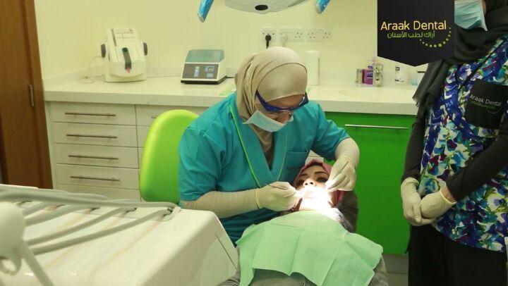 Part 2 #dental #dentist #workout #work #doctors #beforeandafter #dentalassistant #dentalhygienist #teeth #tooth #workouts #araak_dental #dental_araak #doctor #dr #smile #hollywoodsmile #hollywood #dentistry #beforeafter #before #after #afterhours #womenempowerment #surgery #surgeryday #white #whites #whitening #whiten