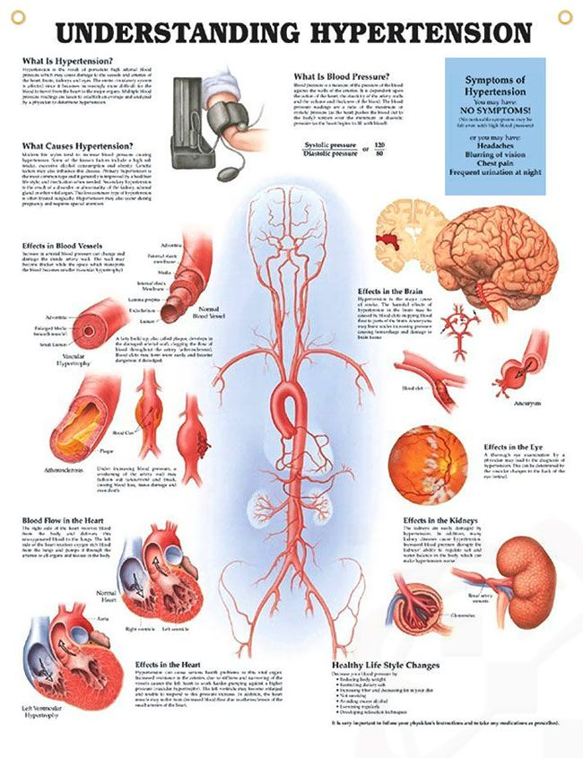 Understanding Hypertension anatomy poster discuses types, causes and common symptoms of blood pressure and hypertension.