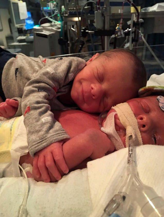Neugeborener Zwilling liebkost kranken Bruder – bis zuletzt