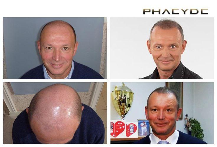 Pal war eine große Herausforderung für Haartransplantation, weil er. Typischer Fall, wo der Haarausfall-Zone ist viel größer, als der Spender. Hatte eine sehr kleine und knappen Spenderzone Da er ein spokeperson im Fernsehen ist, choosed er Haare haben auf der Oberseite und Frontalzone, und nur einige Haare wurden in den Scheitelbereich. Fertig von PHAEYDE Klinik implantiert.  http://de.phaeyde.com/haartransplantation
