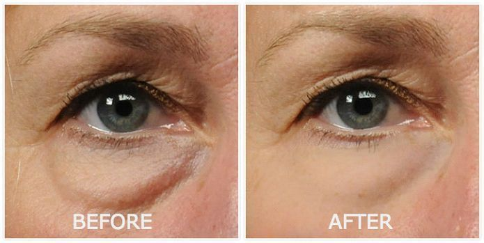 Skin Care Advice That Will Help At Any Age Eye Bags Treatment