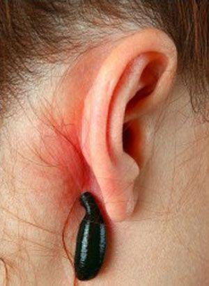 точки за ушами, куда ставить пиявки