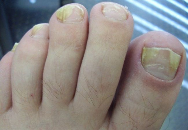 How To Get Rid Of Thick ToeNails