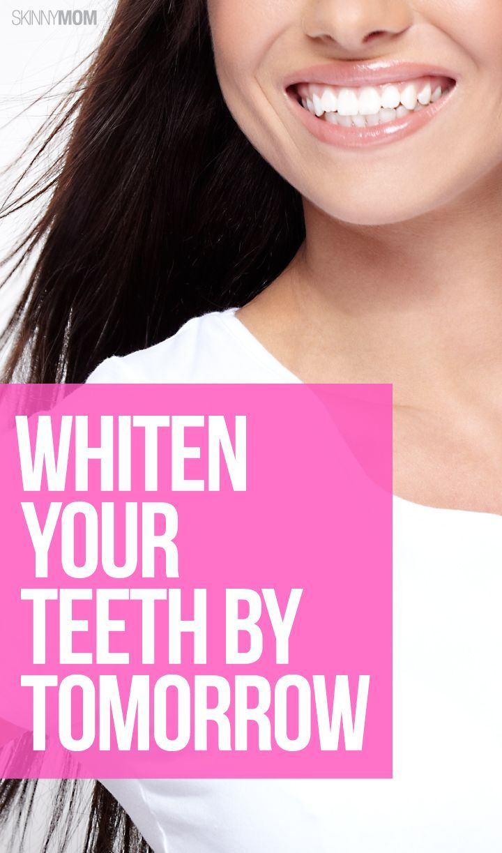 how to make your teeth white fast