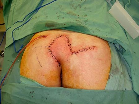 Pilonidal Cyst Surgery Picture
