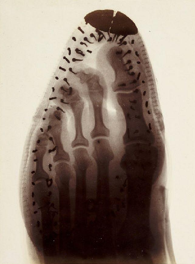 Voici une radiographie d'un pied dans une botte avec bout pointu. Voyez-vous comment le 4e et le 5e orteil sont collés les uns sur les autres ? Cela cause souvent des cors (oeil de perdrix) entre les orteils.