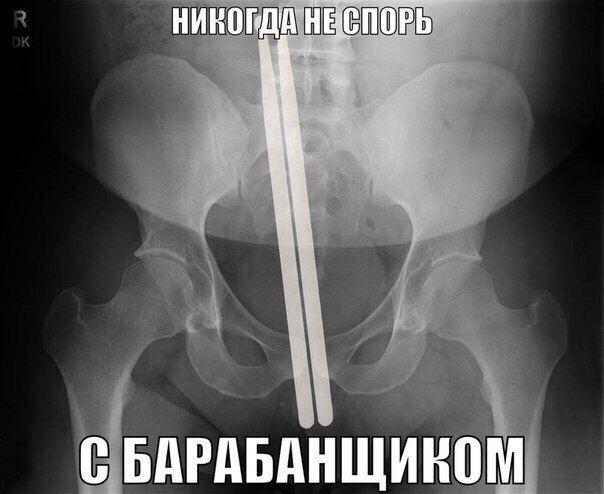 НИКОГДА! #rockmusicpictures #blackandwhite #xray #drumstick #drummer #humor #юмор #угар #ржака #прикол #funny http://quotags.net/ipost/1647911013550184680/?code=BbejlX4HNjo