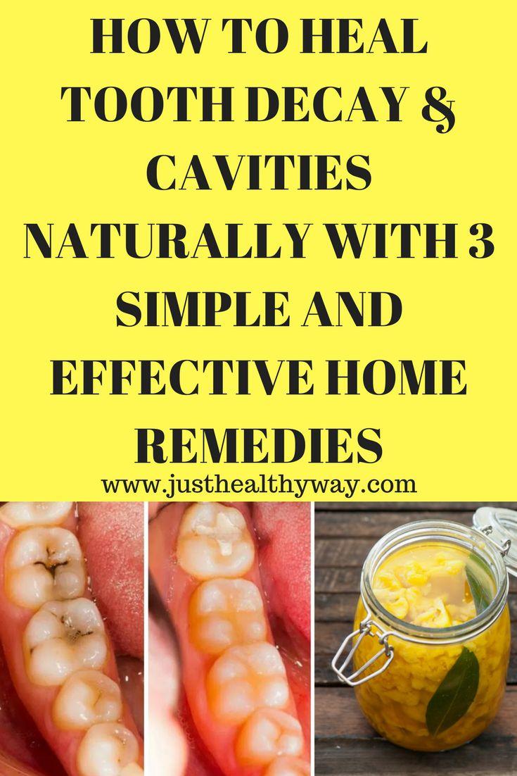 Bright dental implants cavities oralhealthmonthja