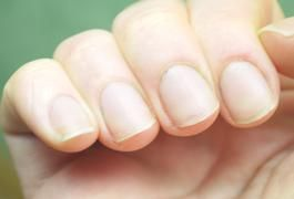 Natural Home Remedies for Cuticle Repair | LIVESTRONG.COM