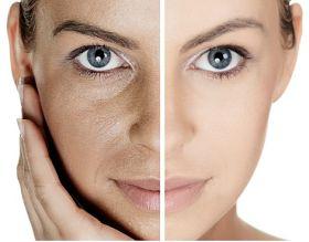 Tips de Belleza para Reducir los Poros Abiertos de la Cara : Maquillaje, Belleza y Moda para la Mujer