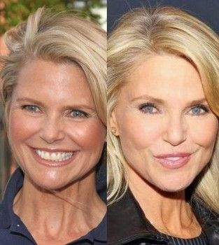 Christie Brinkley: I haven't had plastic surgery but would consider it
