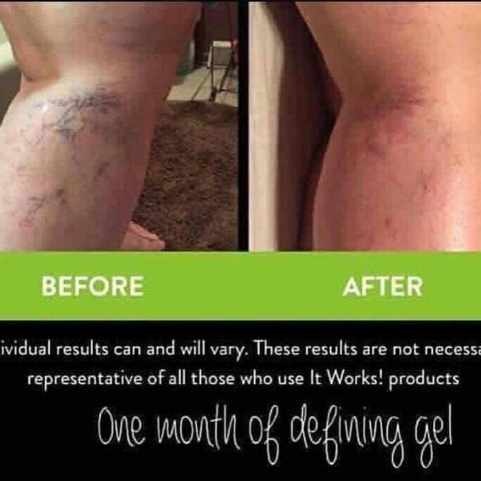 Bye bye #varicoseveins!   Not only does our #DefiningGel help with #Cellulite it also helps with varicose veins too    Are you ready for #swimsuitseason ❓❓   Message me!   #beachready #summertime #itworks #Beautiful #bossbabe