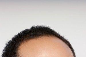 A que se debe la caída del cabello?