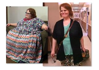 """My 600 lb Life Before And After Pics  My 600 lb Lifeis an addictive TLC series that takes viewers inside the lives of """"morbidly obese"""" people who are trying to lose weight to qualify for weight loss surgery. The show is inspirational and proves that you can do anything you want to as long as you stick to it. Check out the following My 600 lb Lifebefore and after pics.  Dr. Younan Nowzaradan is the true star of the series. He's a surgeon based in Houston and uses tough love to motivate his…"""