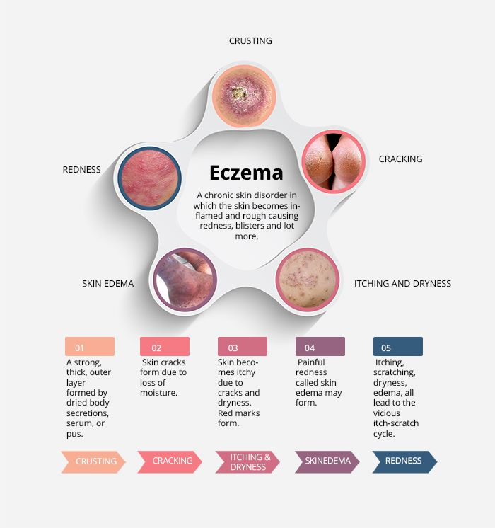 Normal Sleep Cycle Diagram Interesting Facts About Atopic Dermatitis Eczema
