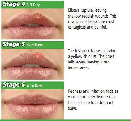 How To Get Rid Of Cold Sores? Cold sores can be very painful and since it is caused by a virus, it can be difficult to get rid of this. It can't be eliminated by our body defences