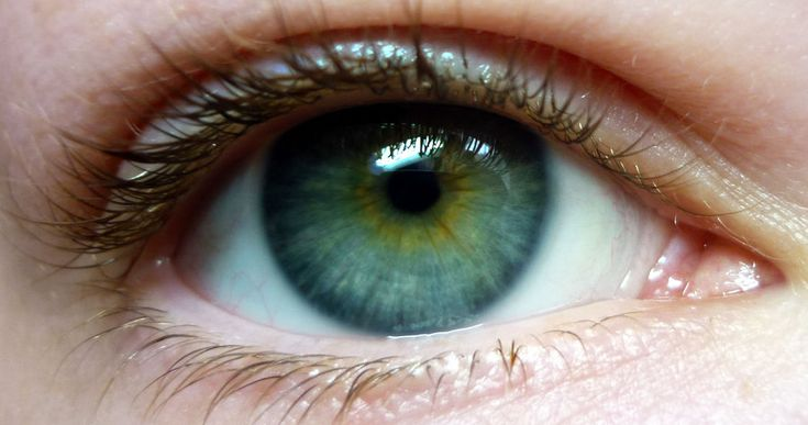Heterochromia Green Yellow Hazel Eyes Central Rare Pictures