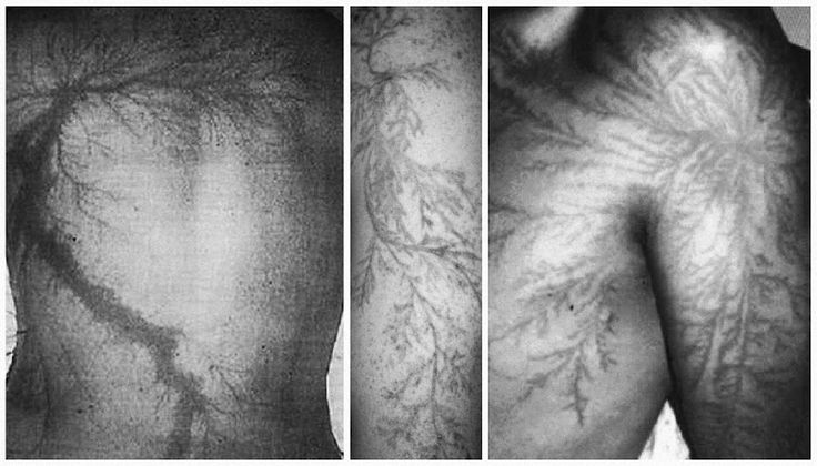 This is a Lichtenberg figure. It is a pattern that is caused by a lightning strike.