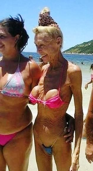 implants after 50 years...