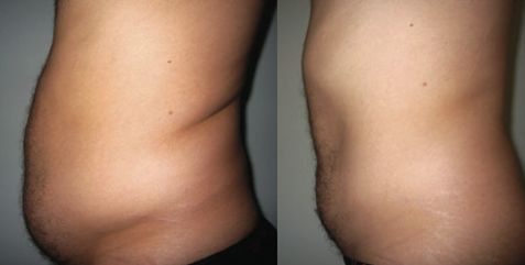 Lipo-Light is also great for men! Belly focus with Lipo-Light at Central Coast Lipo-Light, (805) 473-3496