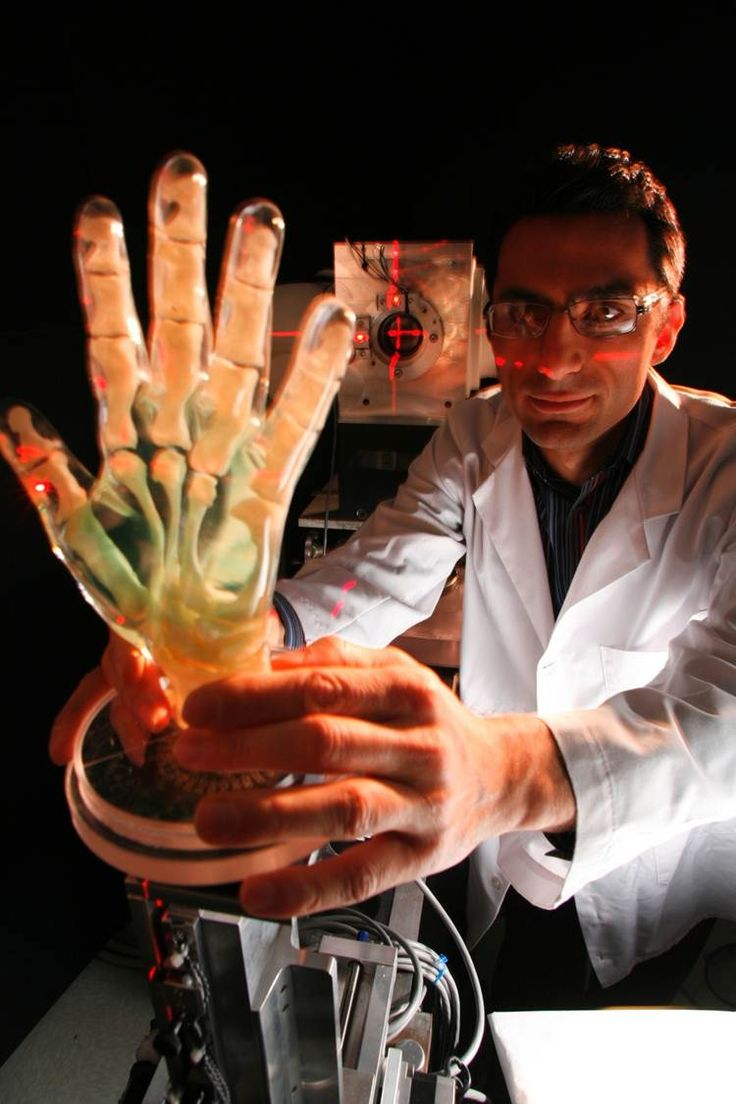 NIBIB researchers are developing new artificial hand systems that would perform complex hand motions based on measurements of the residual electrical signals from the remaining muscles of an amputee's forearm. Signals from the muscles (in one project) and nerves (from another project) have the potential to result in much finer control of the fingers in the artificial hand.