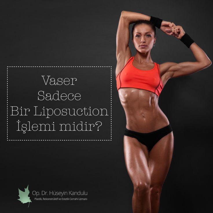Vaser, asla klasik bir liposuction yöntemi değildir. Vaser, tamamen vücudu şekillendirmeye imkan sağlayan, vücudun yüzeyel ve derin planlarında gerekli olan her bölgede sadece yağa özel çalışma imkanı veren vücudu şekillendirmeye yönelik çok değerli bir yöntemdir. http://huseyinkandulu.com/estetik-vaser-liposuction/estetik-karin-kasi/vaser-sadece-bir-liposuction-islemi-midir/