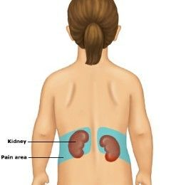 128 best my life with poly cystic kidneys images on pinterest, Cephalic Vein