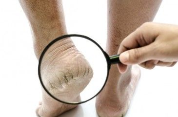 Мазь от трещин на пятках - лечение и причины. Лучшие кремы и мази для заживления трещин на пятках