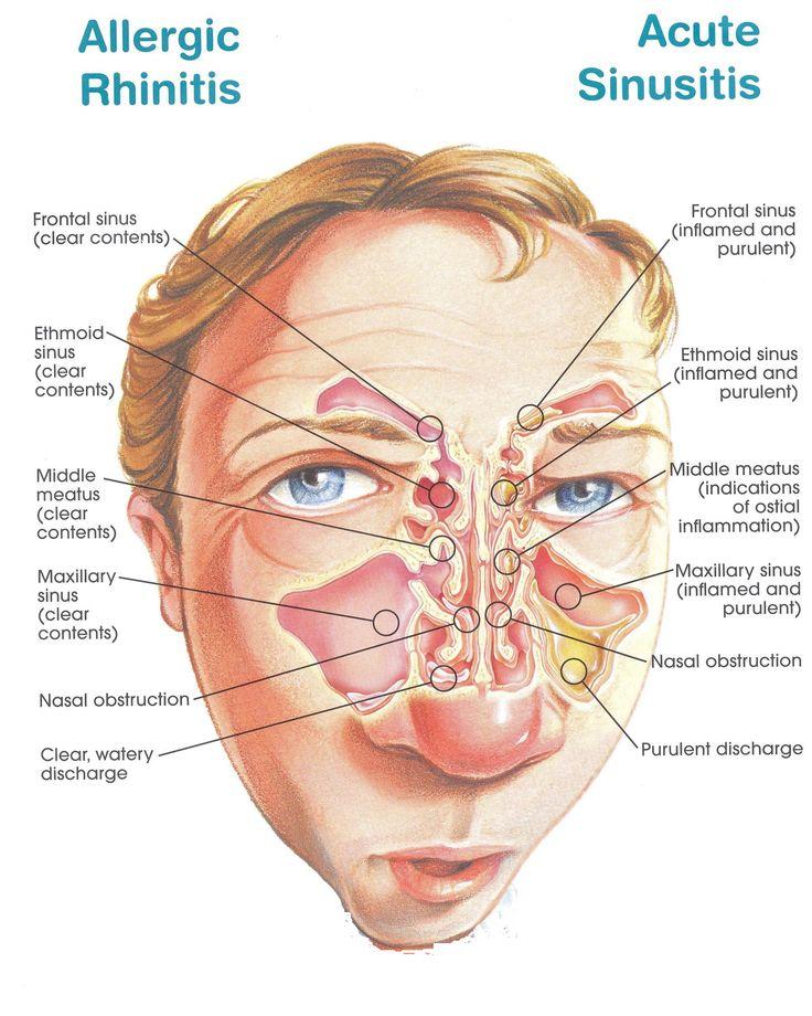 Understanding And Fighting Hay Fever Breathe Better