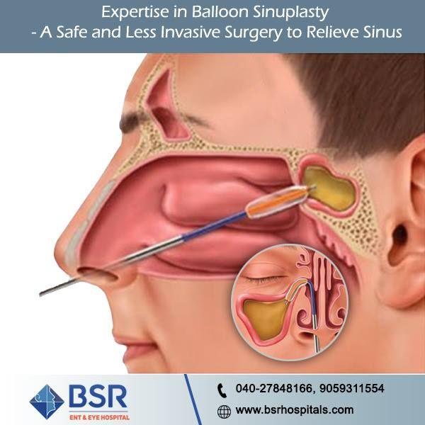 88eec464e46081dc64dbca20a70c1eea - How Much Does It Cost To Get A Sinus Surgery