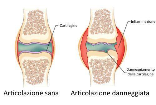 L'artrite è una patologia che può causare forti dolori. Un rimedio naturale per trovare sollievo.