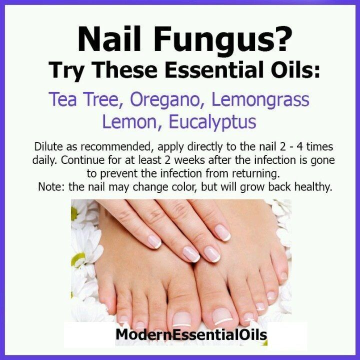 Essential Oils For Nail Fungus Check more at www.healthyandsmo