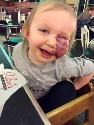 Kelly Bossley shared a story on Facebook about how her daughter Lydia responded when her preschool classmates noticed her port-wine stain birthmark
