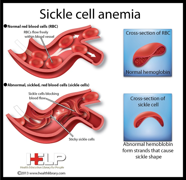 sickle cell anemia and malaria pdf