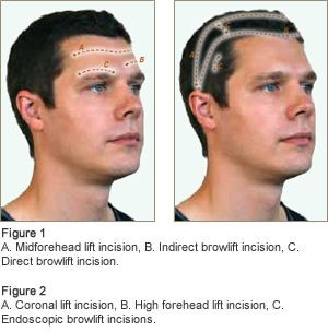 The main difference among the various options for forehead lifting consists of the placement of the incision.