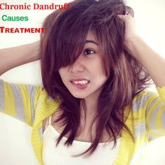 Chronic Dandruff Causes Cure