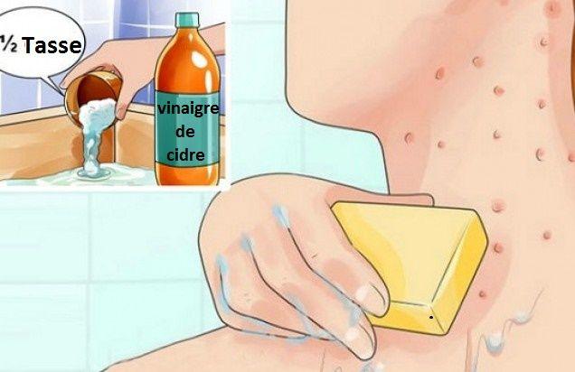 Mettez du vinaigre de cidre sur votre visage et voyez ce qui arrive à l'eczéma et aux taches de vieillesse