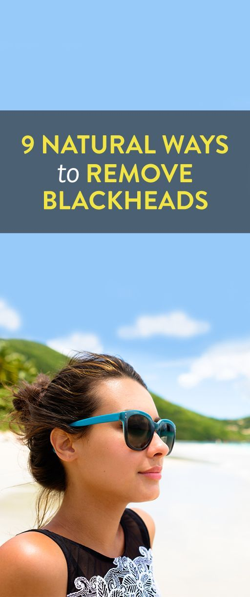 9 Natural Ways To Remove Blackheads To Clear Your Skin Without Any Harsh Chemicals