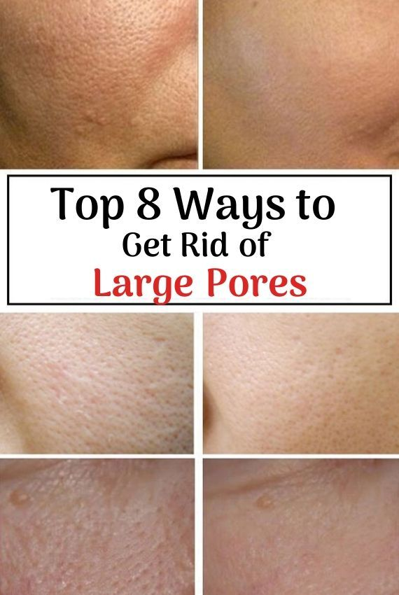 88fc78a3e5d5c3bee9f97d11291f50f6 - How To Get Rid Of Pimples And Pores Fast