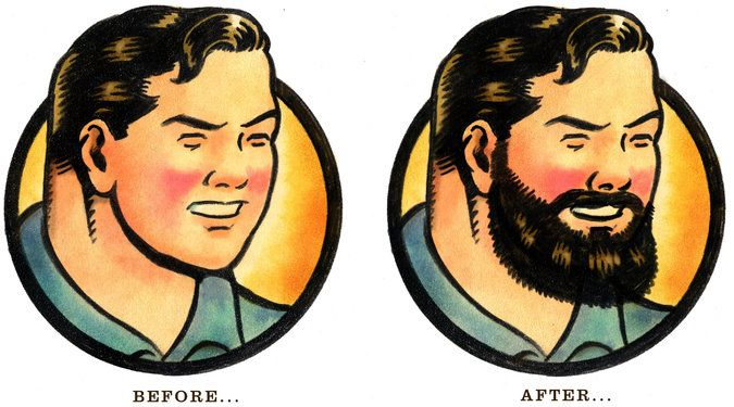 Baby-Faced Men Opt for Beard Transplants - The New York Times