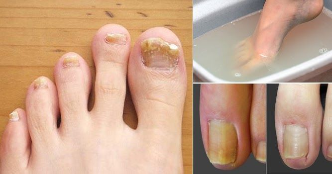 Nail Fungus Is A Common Condition That Begins As A White