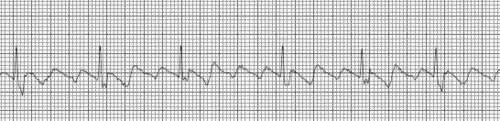Atrial flutter is a rhythm closely related to atrial fibrillation. Pats may often have both rhythms at different times or may have a rhythm called fibrillation/flutter when the rhythm has features of both or switches back and forth between them. The main characteristic of atrial flutter is P waves are replaced by F waves.    The atrial rate in atrial flutter is regular,fast, ranging 150-400 bpm. As in a fib, only some of the impulses reach the ventricles as the rest are blocked by the AV…
