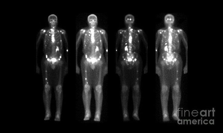 Nuclear Medicine bone scan showing wide spread metastatic disease.