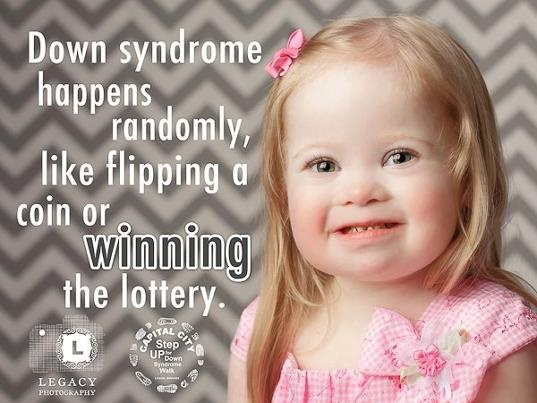 Having a child with Down syndrome is like winning the lottery!
