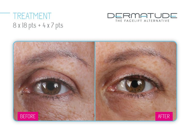 Dermatude Before & After | Dermatude