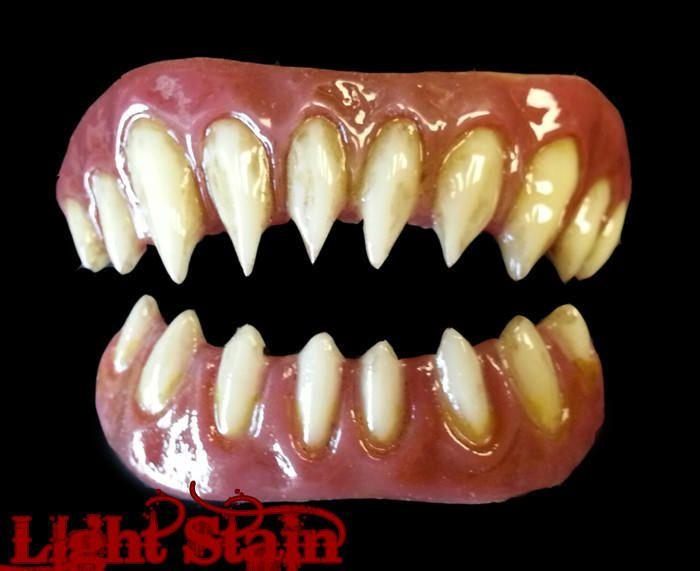 False Teeth Prosthetic – Wonderful Image Gallery