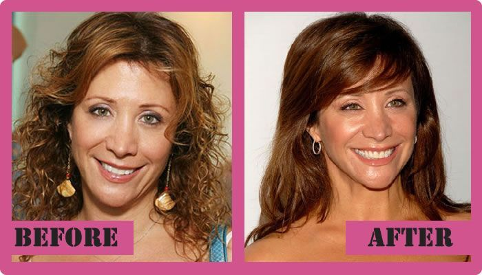 Cheri Oteri Plastic Surgery Before And After Cheri Oteri Plastic Surgery #CheriOteriPlasticSurgery #CheriOteri #gossipmagazines