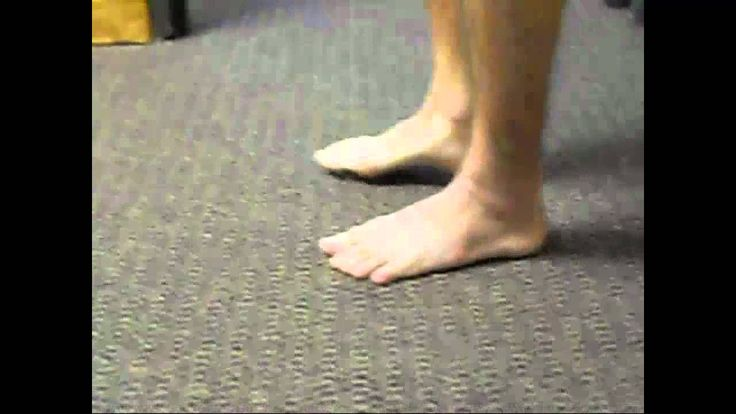 Severe ankle sprain - painfree running and jumping after 4 treatments .mp4