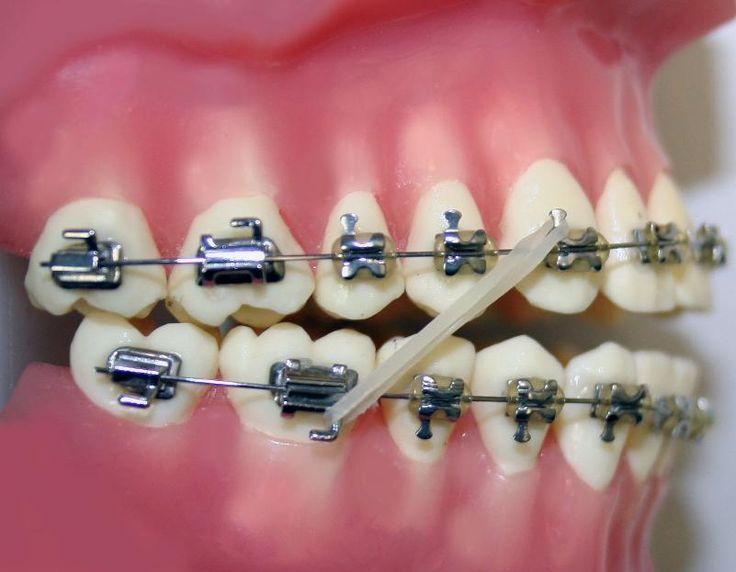 63 Best Orthodontic Appliance Images On Pinterest Dental